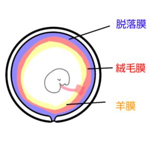 Subchorionic hematoma illustration